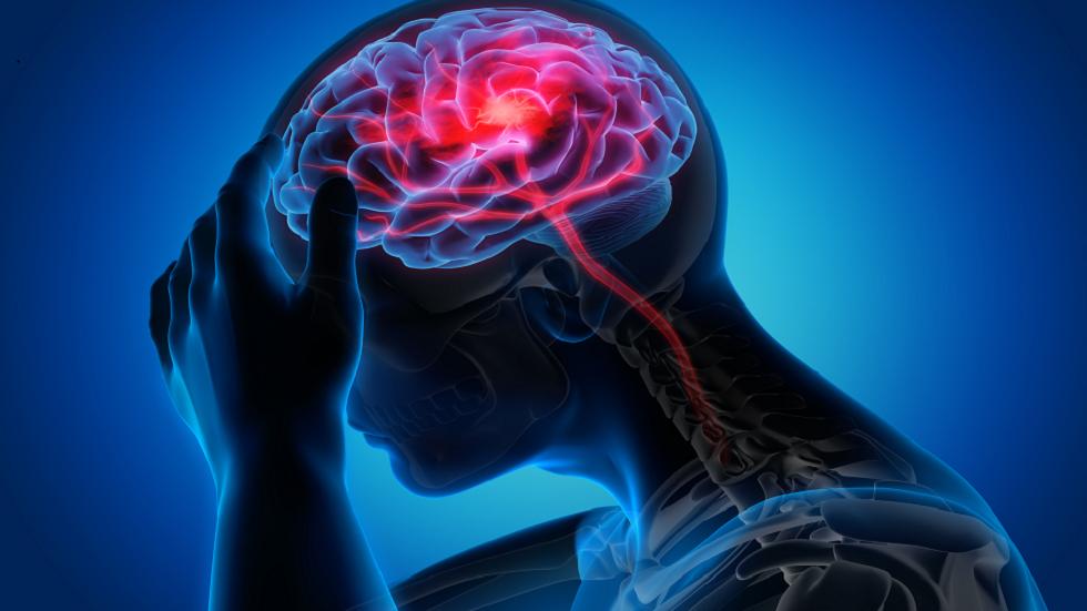 طبيبة تواجه نوعا نادرا ومهددا للحياة من السكتة الدماغية بسبب سعال مزمن دام 4 سنوات