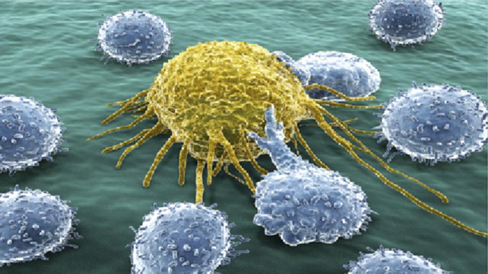كشف وتحديد أعراض سرطان البنكرياس