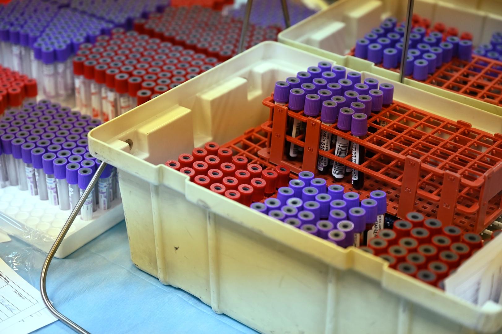 وكالة روسية تطور اختبارا للكشف عن 4 نسخ متحورة من فيروس كورونا