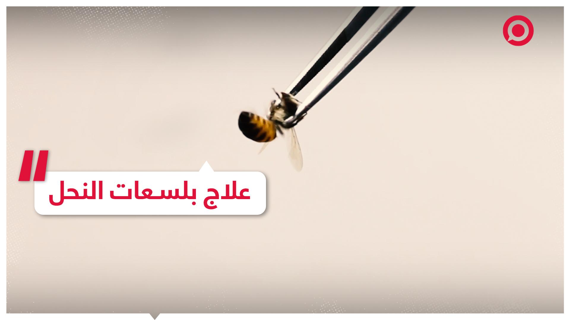 علاج بلسعات النحل