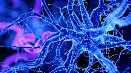 """دراسة تحدد كيف يرتبط """"كوفيد-19"""" بضعف الإدراك الشبيه بمرض ألزهايمر"""