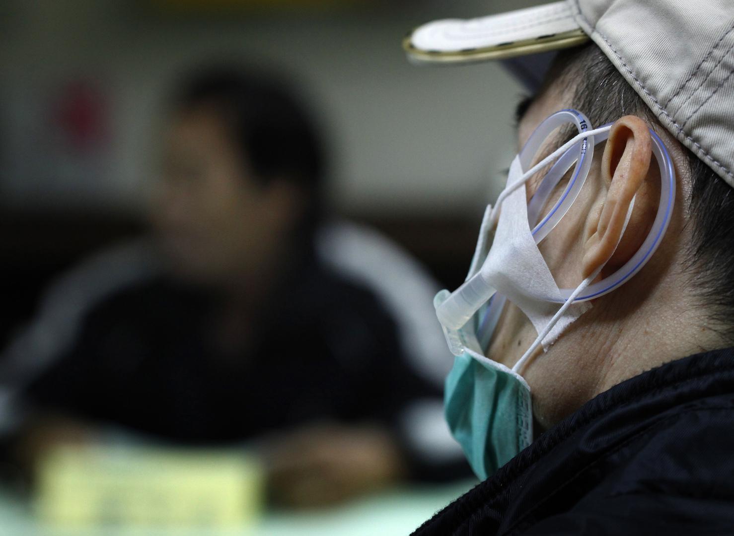 خبراء: 3 أعراض على اللسان قد تكون مؤشرا على الإصابة بالسرطان