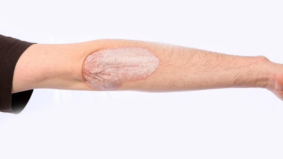 تشقق جلد المرفقين يشير إلى أمراض معينة