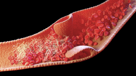 """دراسة تحدد سبب تشكّل جلطات الدم لدى المصابين بـ""""كوفيد-19"""" الشديد"""