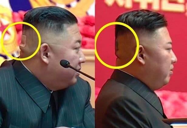 صور كيم جونغ أون مع ندبة في رأسه تثير جدلا حول حالته الصحية