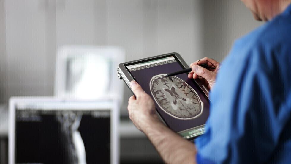 خبيرة تكشف عن 7  عوامل تزيد من خطر الإصابة بأكثر أمراض الخرف شيوعا