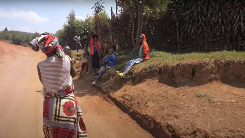 والده أراد قتله.. طفل رواندي يعاني التنمر بسبب تشوهات خلقية
