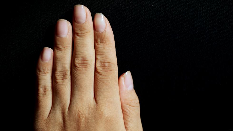 5 علامات في الأظافر تدل على نقص في الفيتامينات