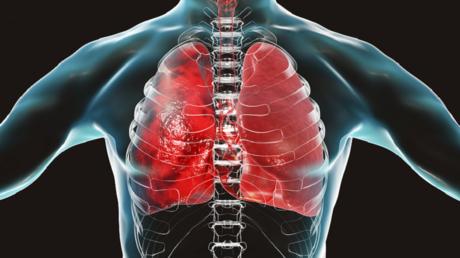 """صور الأشعة السينية تكشف تأثر التطعيم من عدمه على الرئتين لدى مرضى """"كوفيد-19"""""""
