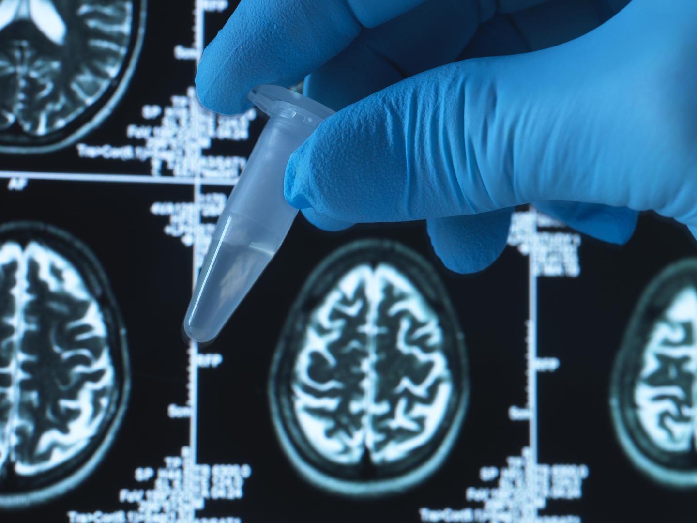 علماء يكتشفون شكلا نادرا وخطيرا من مرض ألزهايمر يبدأ مطلع الأربعينات