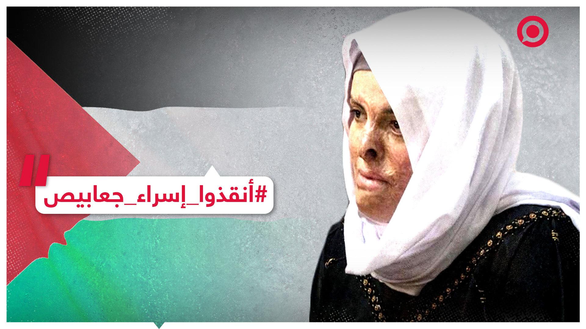 الأسيرة الجريجة إسراء جعابيص تعاني في السجون الإسرائيلية