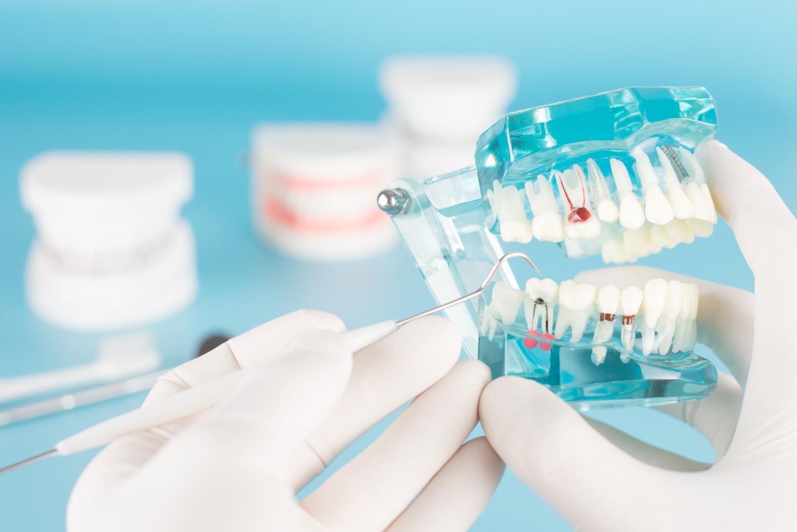 باحثون يطورون غرسات أسنان