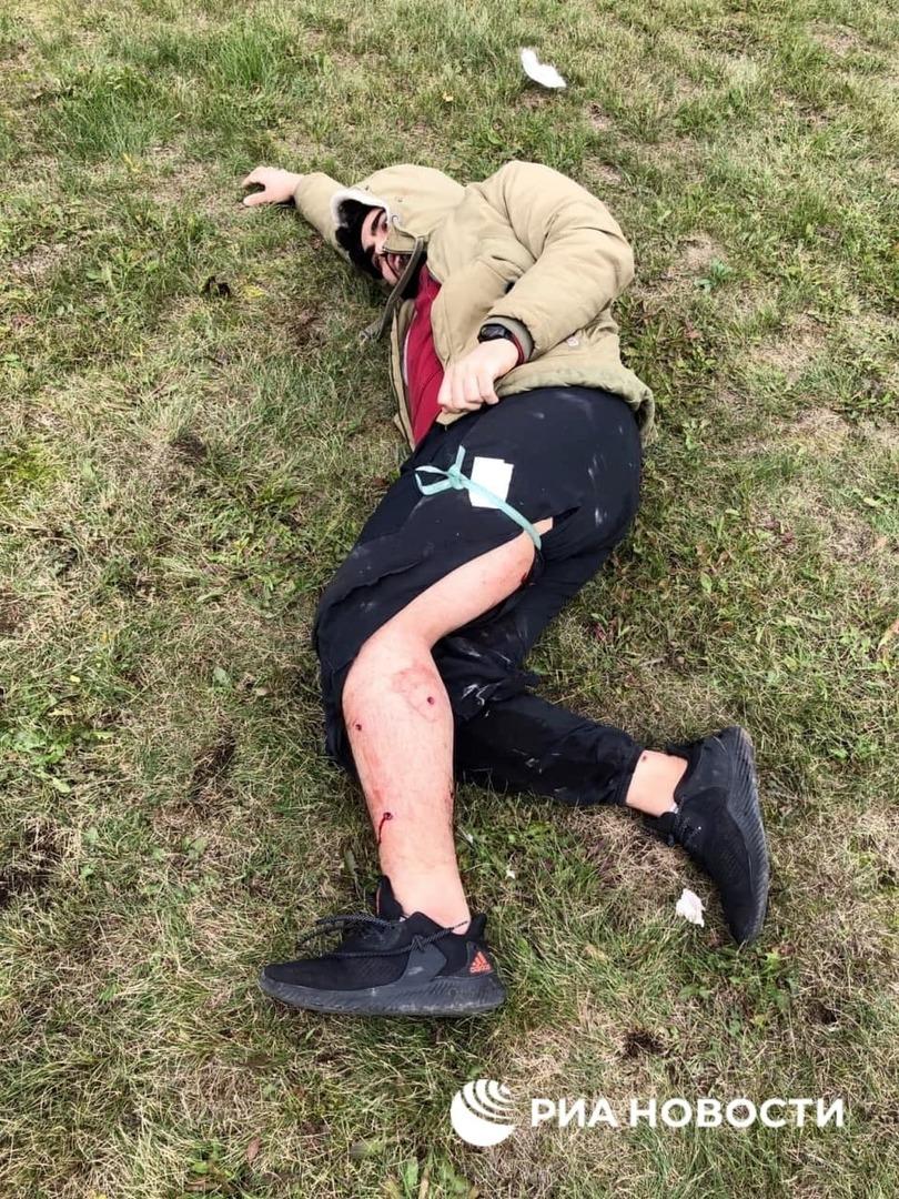 طالب عربي من بين المصابين بالهجوم المسلح بجامعة بيرم الروسية (صور)