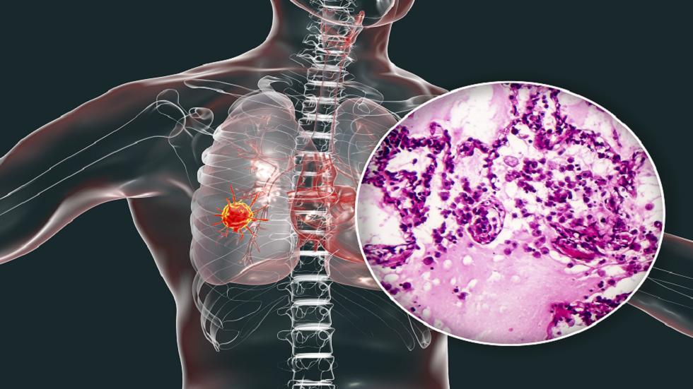 4 أعراض غريبة لسرطان الرئة يجب أن تكون على دراية بها