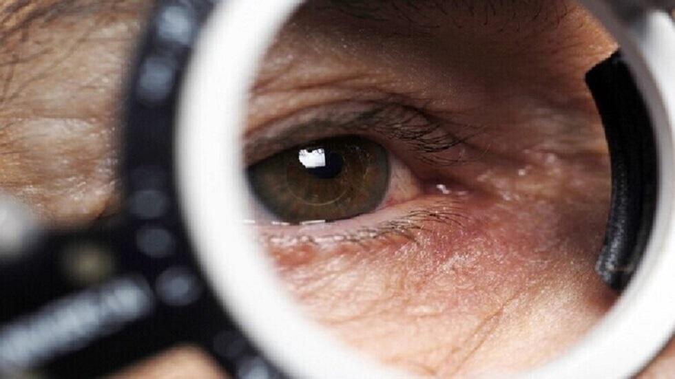 طبيبة روسية توضّح لماذا تتفاعل العيون مع أمراض البرد