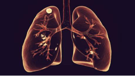 """كيف يمكن لاختبار """"فجوة الماس"""" أن يكشف عن خطر الإصابة بسرطان الرئة؟"""