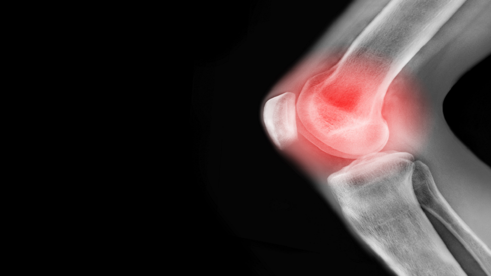 A drink that can reduce symptoms of painful arthritis