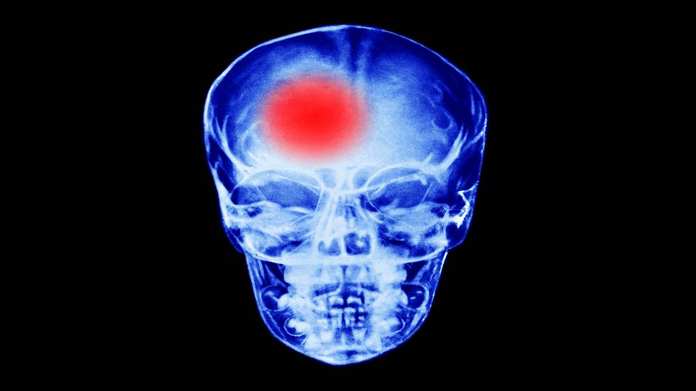 أفضل الخطوات التي يمكن اتخاذها للوقاية من السكتة الدماغية!
