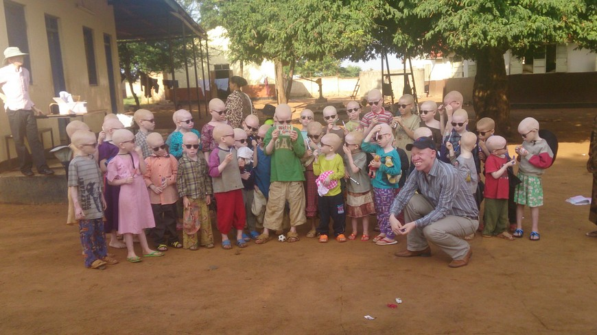 Africa albinos attacked in Tanzania