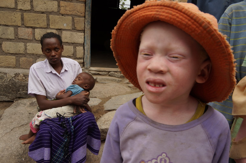 Albino children in Tanzania
