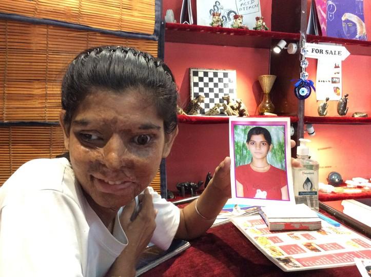 Acid attack survivors in India