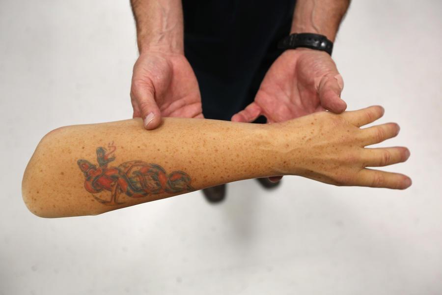Безрукого инвалида не пустили в Великобританию из-за отсутствия отпечатков пальцев