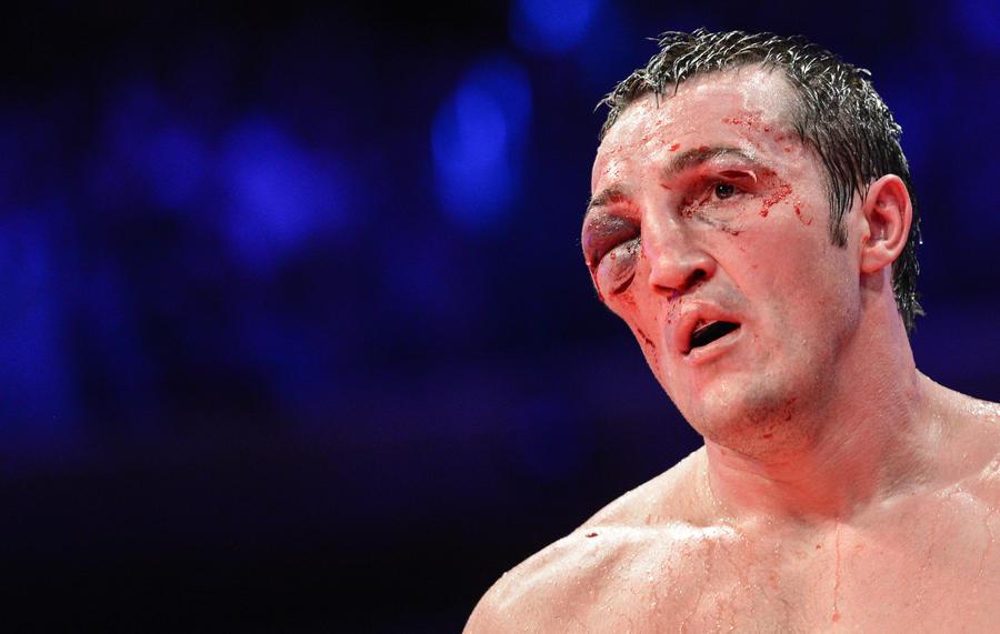 Российскому боксёру отдали чемпионский титул после проигрыша: соперник провалил тест на допинг