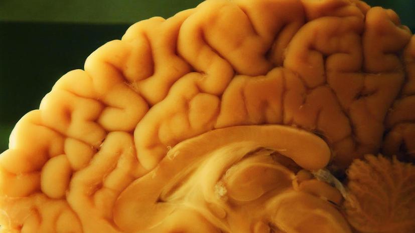 Атомные бомбы помогли учёным выяснить, восстанавливаются ли нервные клетки