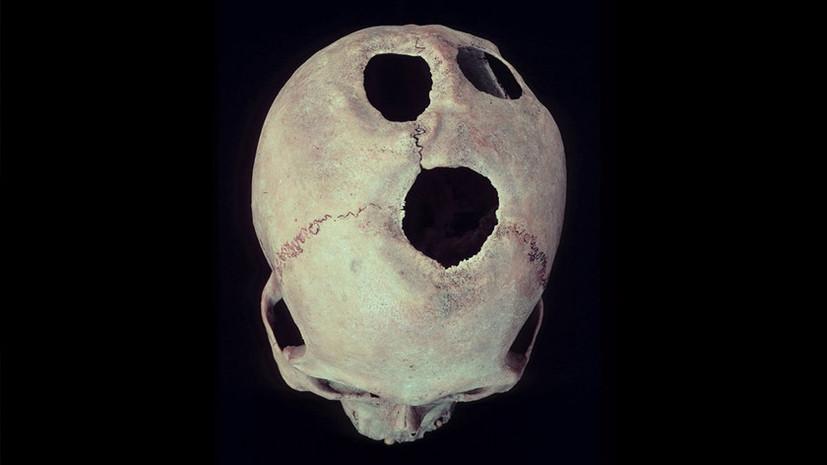 Подход с головой: древние медики успешно проводили трепанацию черепа