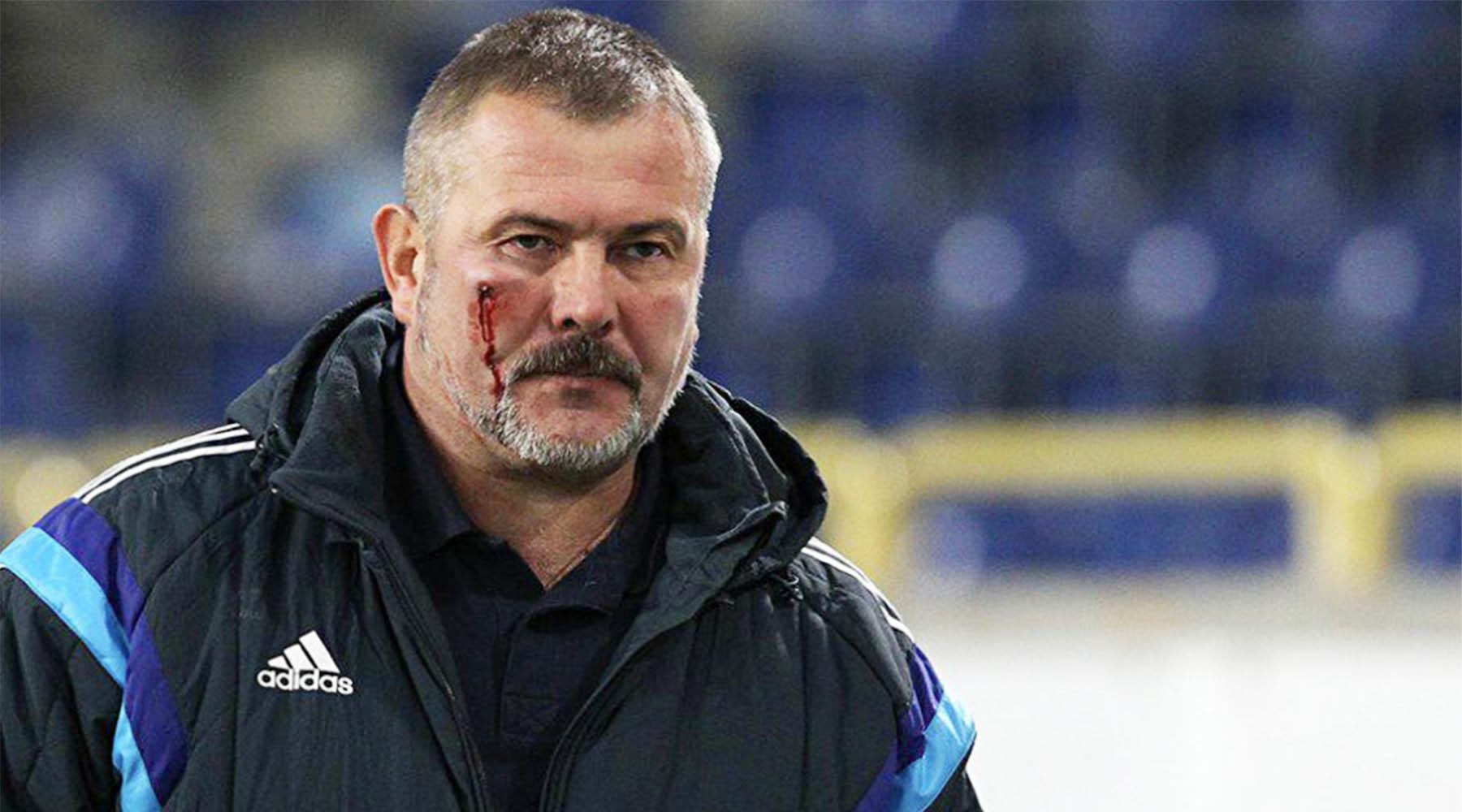 Командир полка «Днепр-1» и депутат Рады Береза избит во время футбольного матча