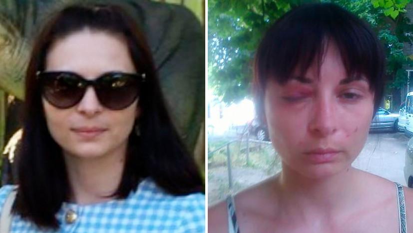 МВД Украины признало факт пыток обвиняемой в госизмене Дарьи Мастикашевой