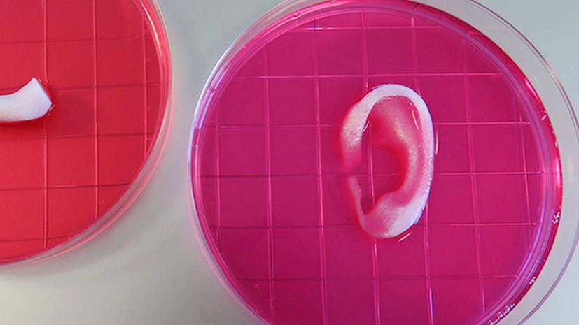 «Печатный» орган: китайские учёные вырастили и пересадили ушные раковины сразу пятерым детям