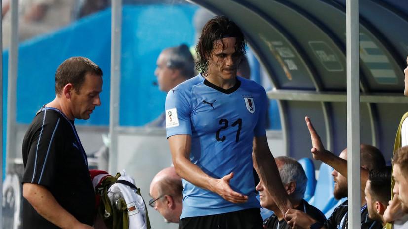 Кавани ответил на вопрос о травме, полученной им в матче ЧМ-2018 с Португалией