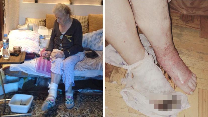 «Требуют экстренно отнять вторую»: воронежских врачей обвиняют в ампутации пенсионерке левой ноги вместо правой