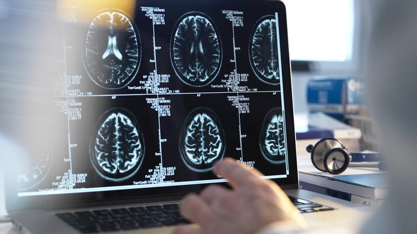 Молодость в умах: учёные выяснили, что мужской мозг «старше» женского