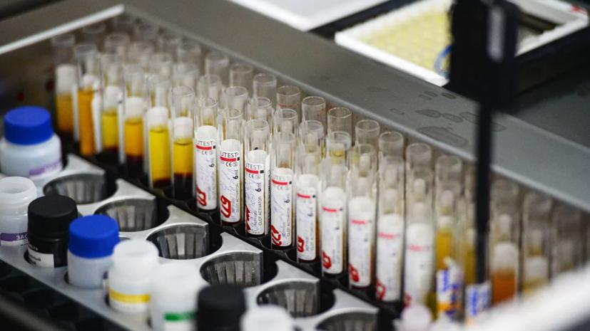 Новый штамм ВИЧ обнаружен впервые за почти 20 лет