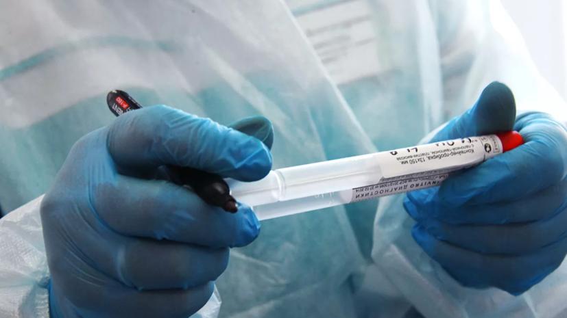 Пилотное применение новых тестов на коронавирус могут начать в апреле