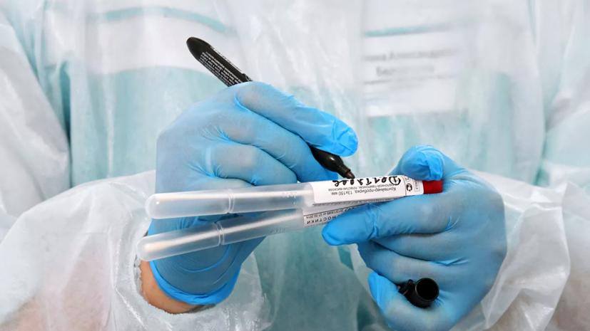 Росздравнадзор зарегистрировал первый российский экспресс-тест на коронавирус