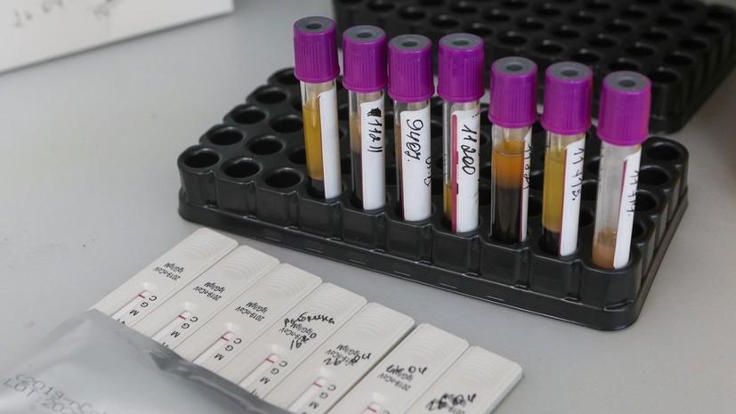 Минздрав заявил о риске поражения мозга при заболевании коронавирусом