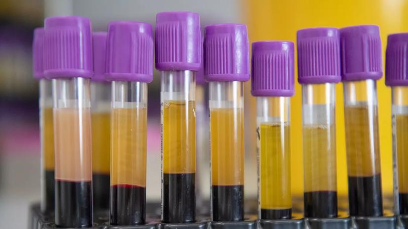 В России зарегистрирован тест на определение антител к коронавирусу