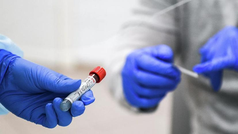 Росздравнадзор: для подтверждения COVID-19 мало теста на антитела