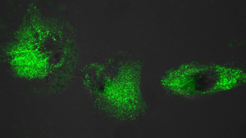 Яркая метка: как новые соединения помогут врачам определить переизбыток кальция в организме