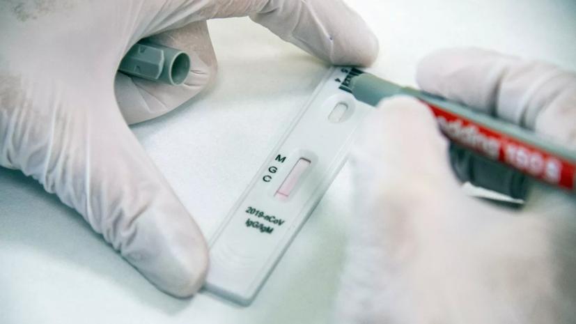 Внуково запустит экспресс-тест на антитела к COVID-19 в терминале A
