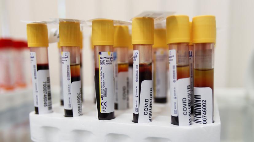 В России за сутки выявлено 5842 случая коронавируса