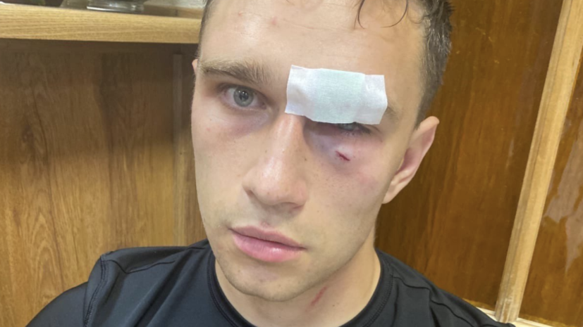 Избитый Широковым арбитр обратился в полицию