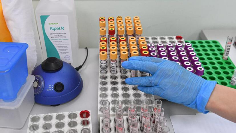 В России за сутки выявлено 4744 случая коронавирусной инфекции