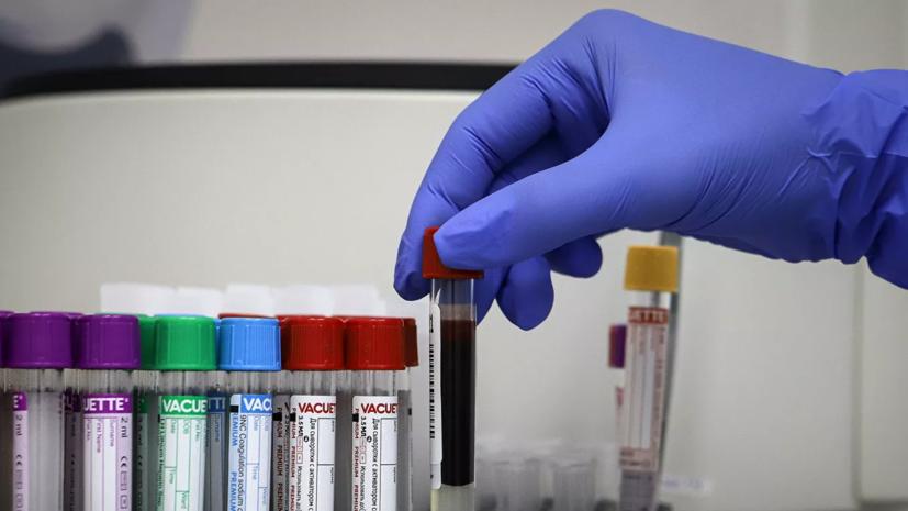В России за сутки зафиксировано 5110 случаев коронавируса