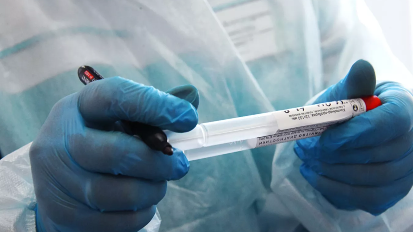 В Казани оценили ситуацию с коронавирусом