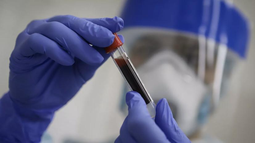 В Москве скончались ещё 23 пациента с коронавирусом