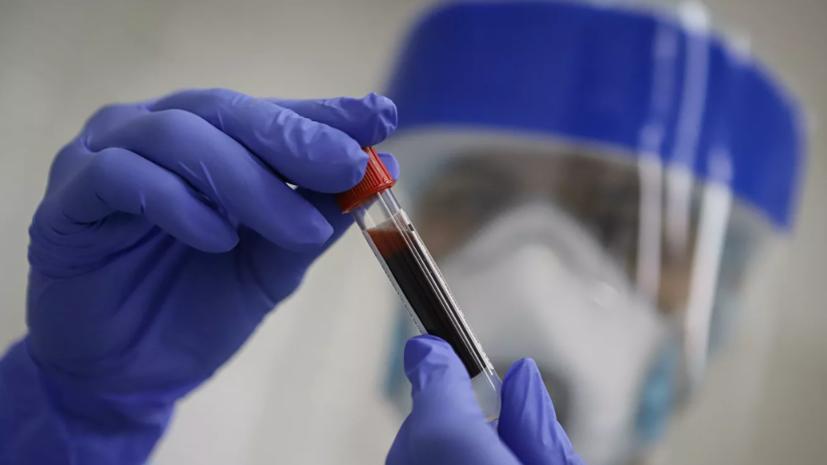 В Казахстане за сутки выявили 100 новых случаев коронавируса
